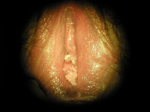 Normal Penis Video 66